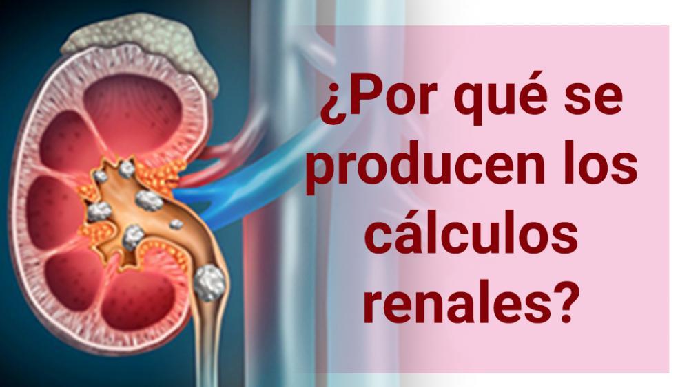 ¿Por qué se producen los cálculos renales?