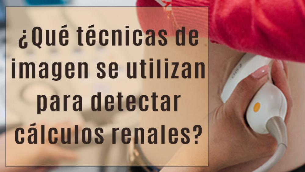 ¿Qué técnicas de imagen se utilizan para detectar cálculos renales?