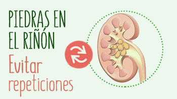 Piedras en el riñón. Que hacer para evitar repeticiones