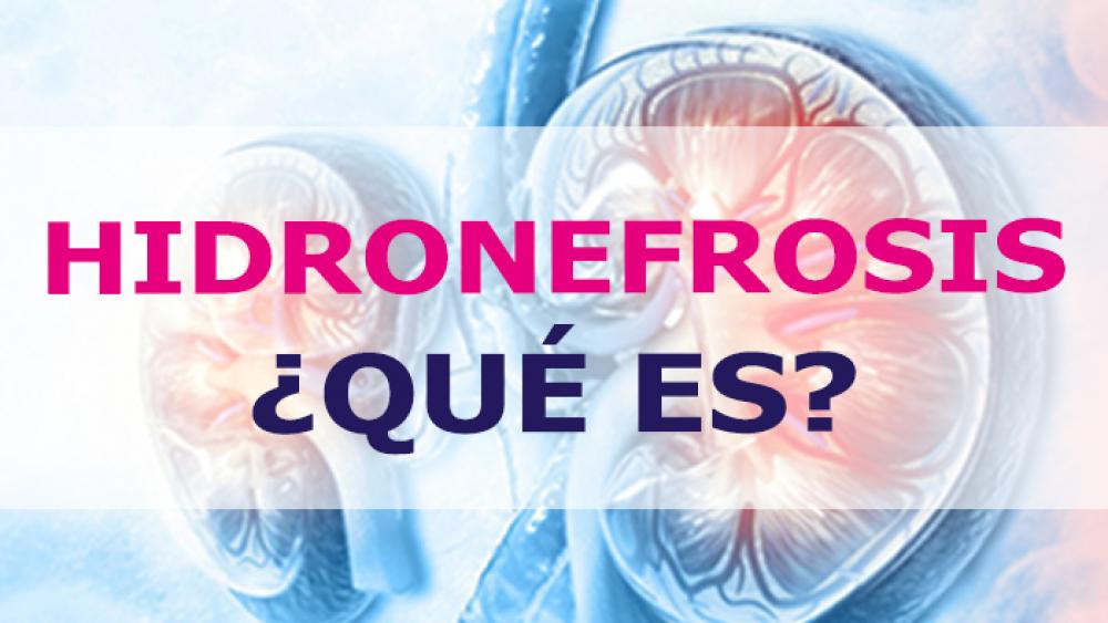 ¿Qué es la hidronefrosis?